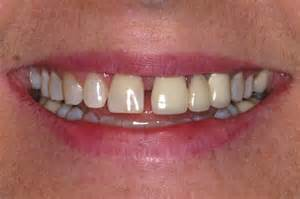 gap in front teeth disterma